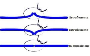 Tipologie di sutura